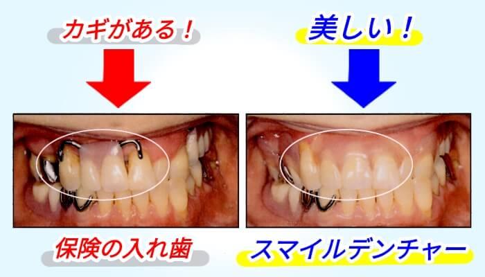 スマイルデンチャー前歯
