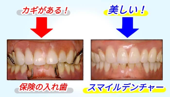 スマイルデンチャー前歯と奥歯