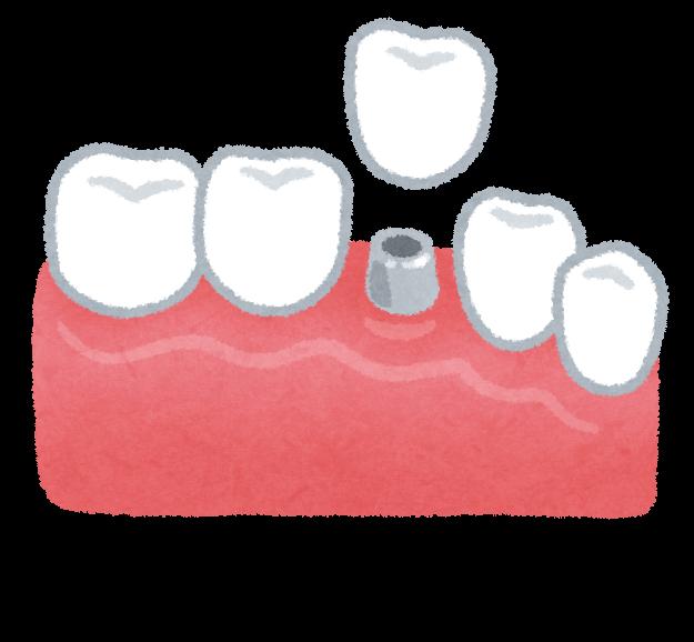 インプラントのイラスト(歯の治療)   かわいいフリー素材集 いらすとや